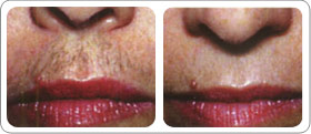 Before and after of a lip waxing.